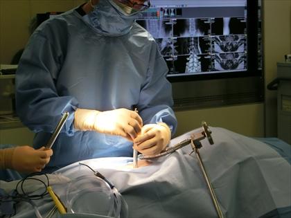 顕微鏡手術