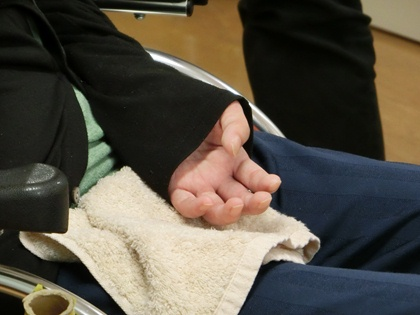 左手の麻痺