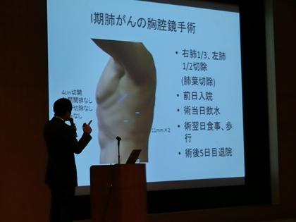 負担の少ない腹腔鏡手術