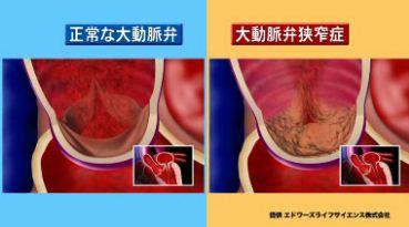 大動脈弁狭窄症