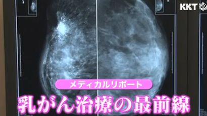 乳がん治療の最前線