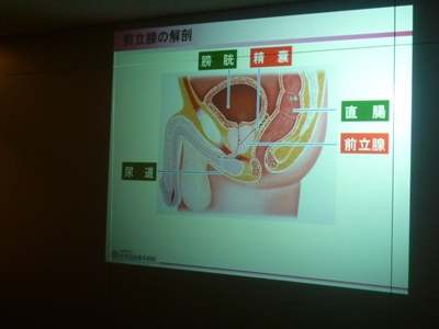 前立腺スライド