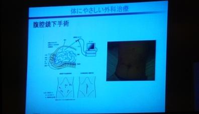 内視鏡手術の低侵襲
