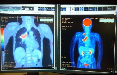 PET/CT画像