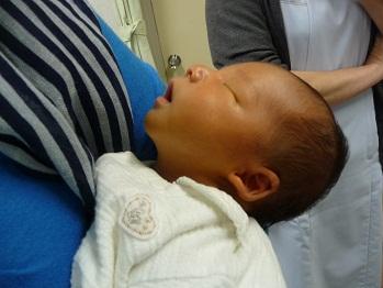 乳児の股関節脱臼