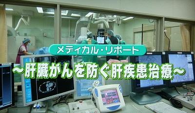 肝臓がんを防ぐ肝疾患治療