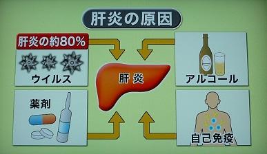肝疾患原因