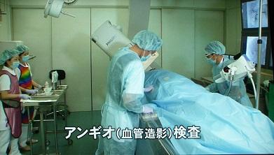 アンギオ(血管造影)検査