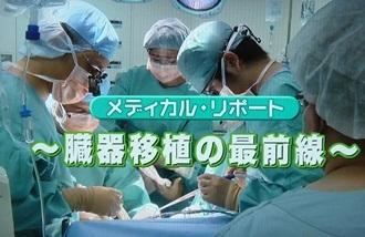 臓器移植の最前線
