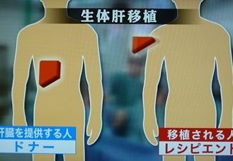 生体肝移植