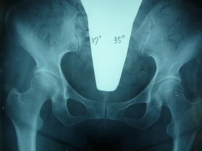 正常な股関節