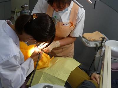 予防歯科にも