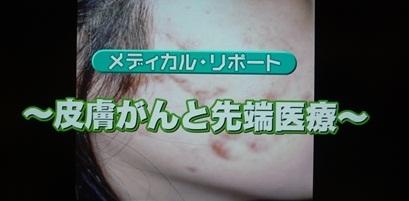 皮膚がんと先端医療