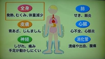 血管炎の症状