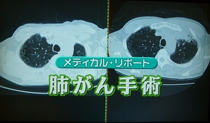 肺がん手術