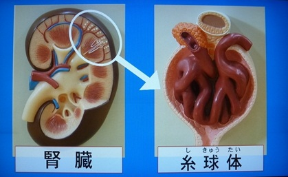 腎臓の病気の特徴