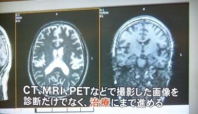 CT、MRI、PET