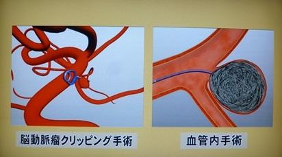 くも膜下出血治療法